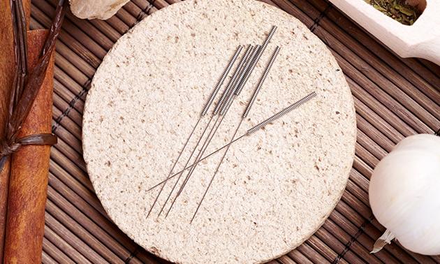 Geertje Tameling Acupunctuur en voedingsadvies