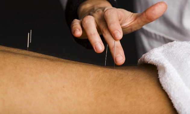 Karina Schwencke Acupunctuur