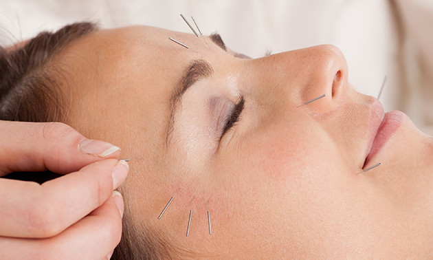 Praktijk voor Acupunctuur Uden