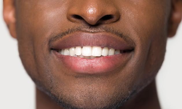 Shine Teeth Whitening