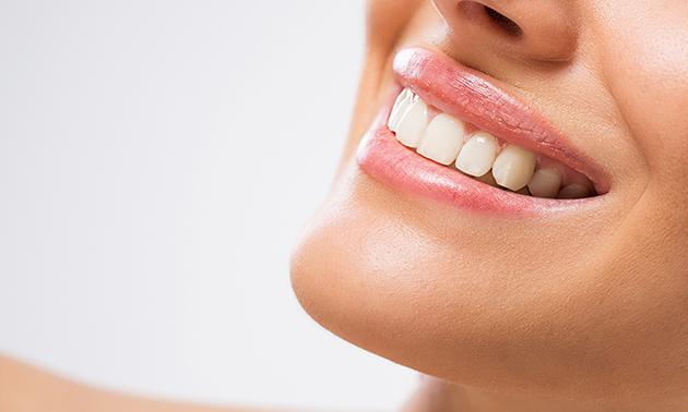 Tandenbleekpraktijk Uden