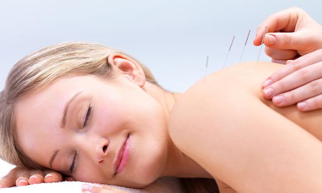 1, 3 of 5 acupunctuurbehandelingen (à 60 min)