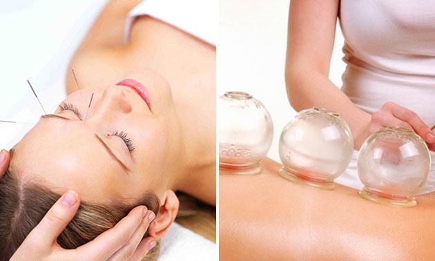 Acupunctuurbehandeling of cuppingmassage (60 min)
