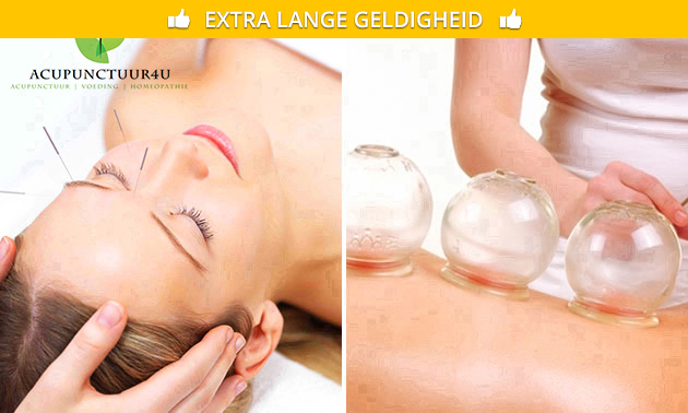 Acupunctuurbehandeling of cuppingmassage (60 min)