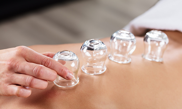 Cuppingmassage(s)