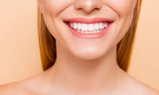 Zahnbleaching-Behandlung(en)