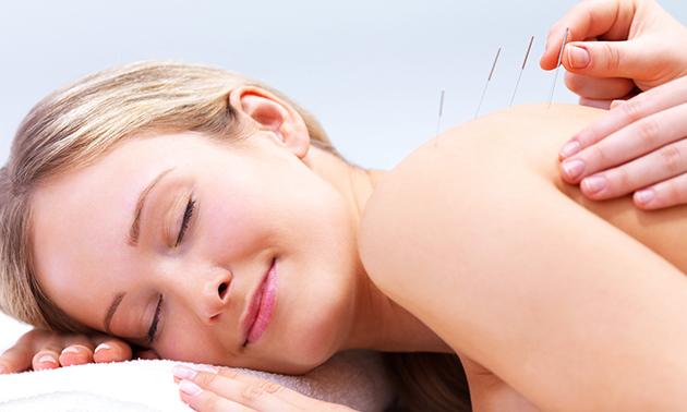 Acupunctuurbehandeling(en) (45 min)