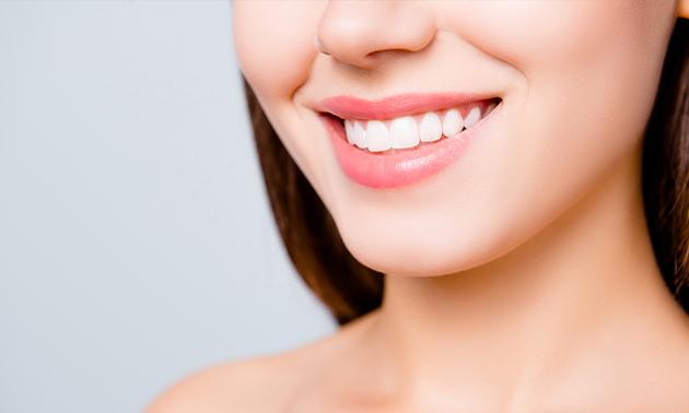 Tandenbleekbehandeling bij Beauty by Stouthamer