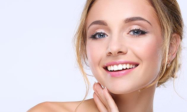Tandenbleekbehandeling (75 min)