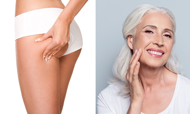Cellulite-, afslank- of rimpelbehandeling