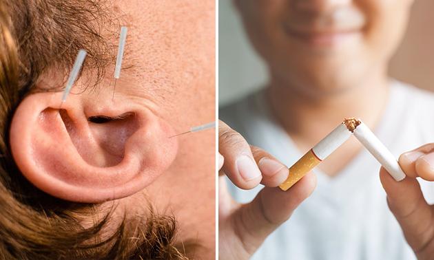 Hulp bij stoppen met roken met 1 sessie oor-acupunctuur