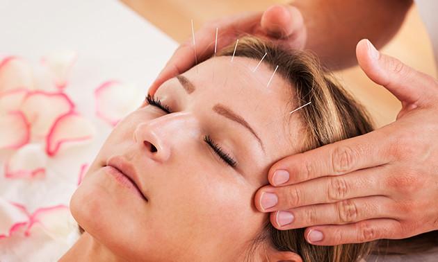 Acupunctuursessie(s) of massage(s)
