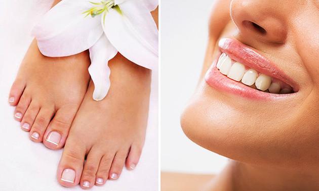 Tandenbleekbehandeling of kalknagelbehandeling