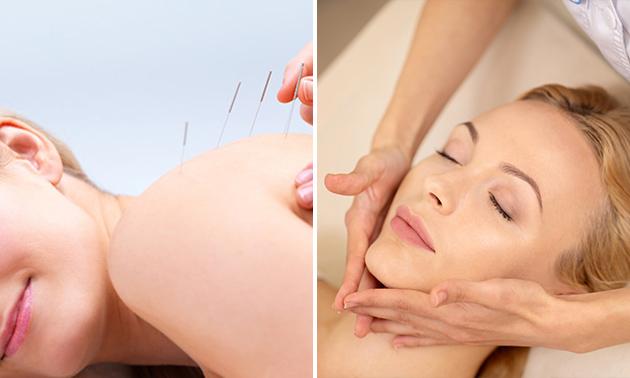 Acupunctuur- of healingsessie (60 min)