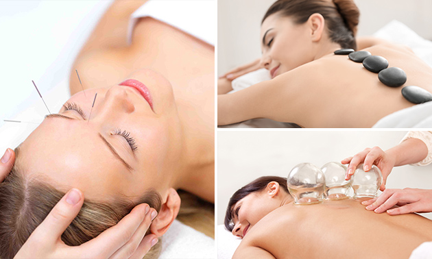 Acupunctuursessie(s) of TuiNa-massage (60 min)