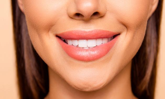 Tandenbleekbehandeling bij Love2Smile