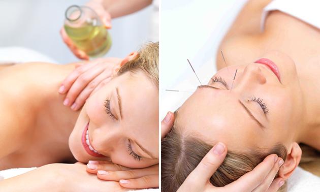 Massage naar keuze of 1 of 3 acupunctuursessies