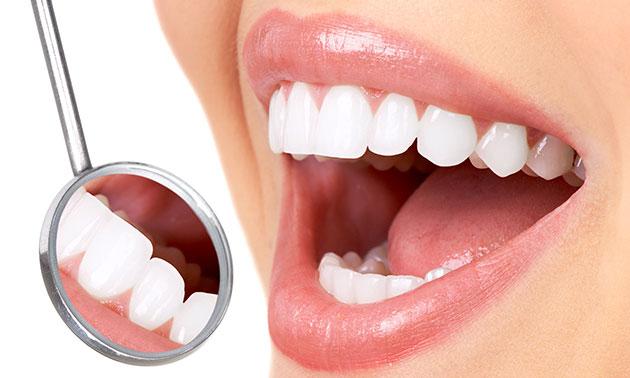 Dubbele tandenbleekbehandeling