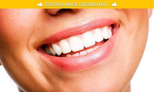Tandenbleekbehandeling voor 1 of 2 personen