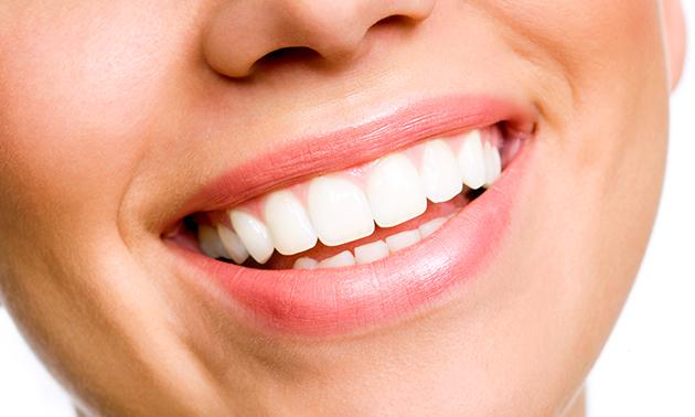 Tandenbleekbehandeling bij Ultra White