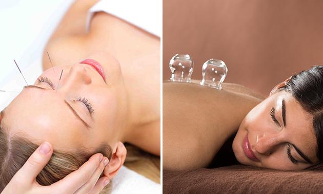 Acupunctuurbehandeling (60 min) + evt. cupping